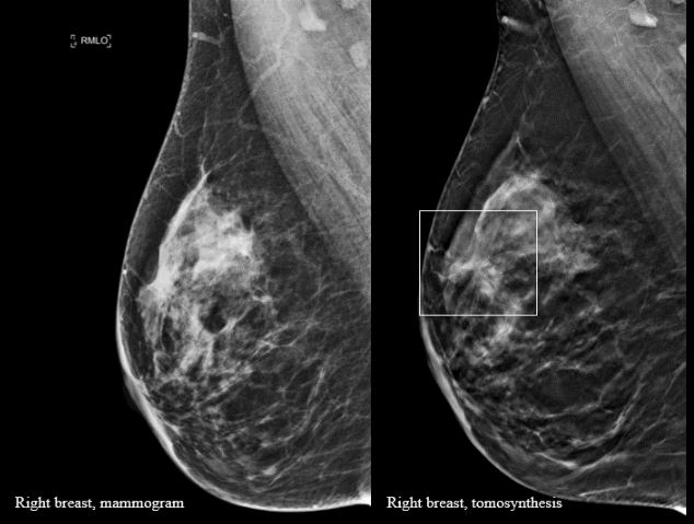 More Breast Cancers Detected With 3d Mammography National Breast